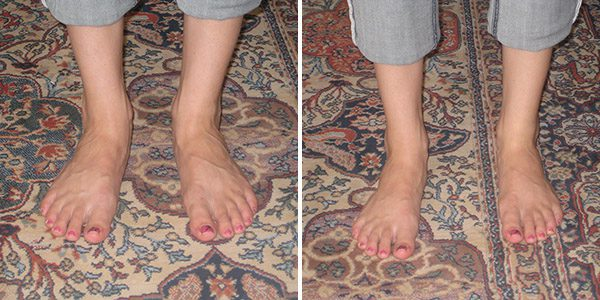 aebt-foot-therapy-before-and-after